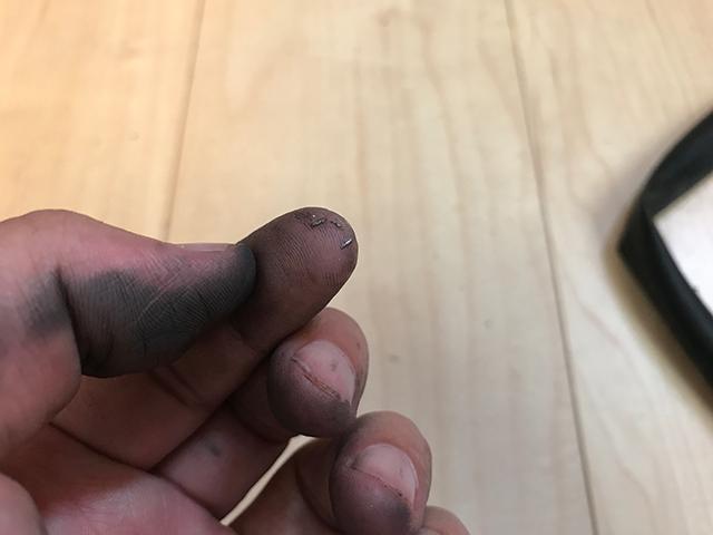 人差し指の先にある小さな金属片が刺さっていた